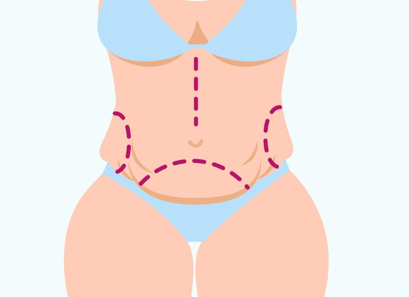 Cirurgia para o Abdômen